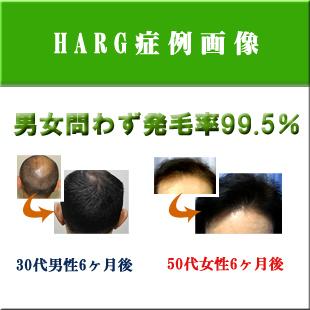 薄毛治療症例画像のイメージ