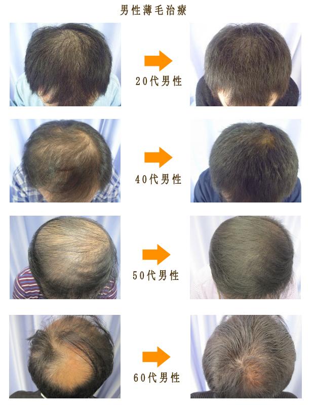 男性薄毛治療画像